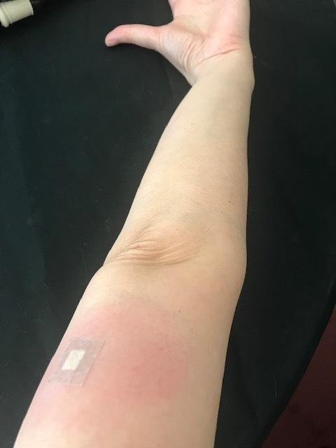 インフルエンザ ワクチン 腫れ た